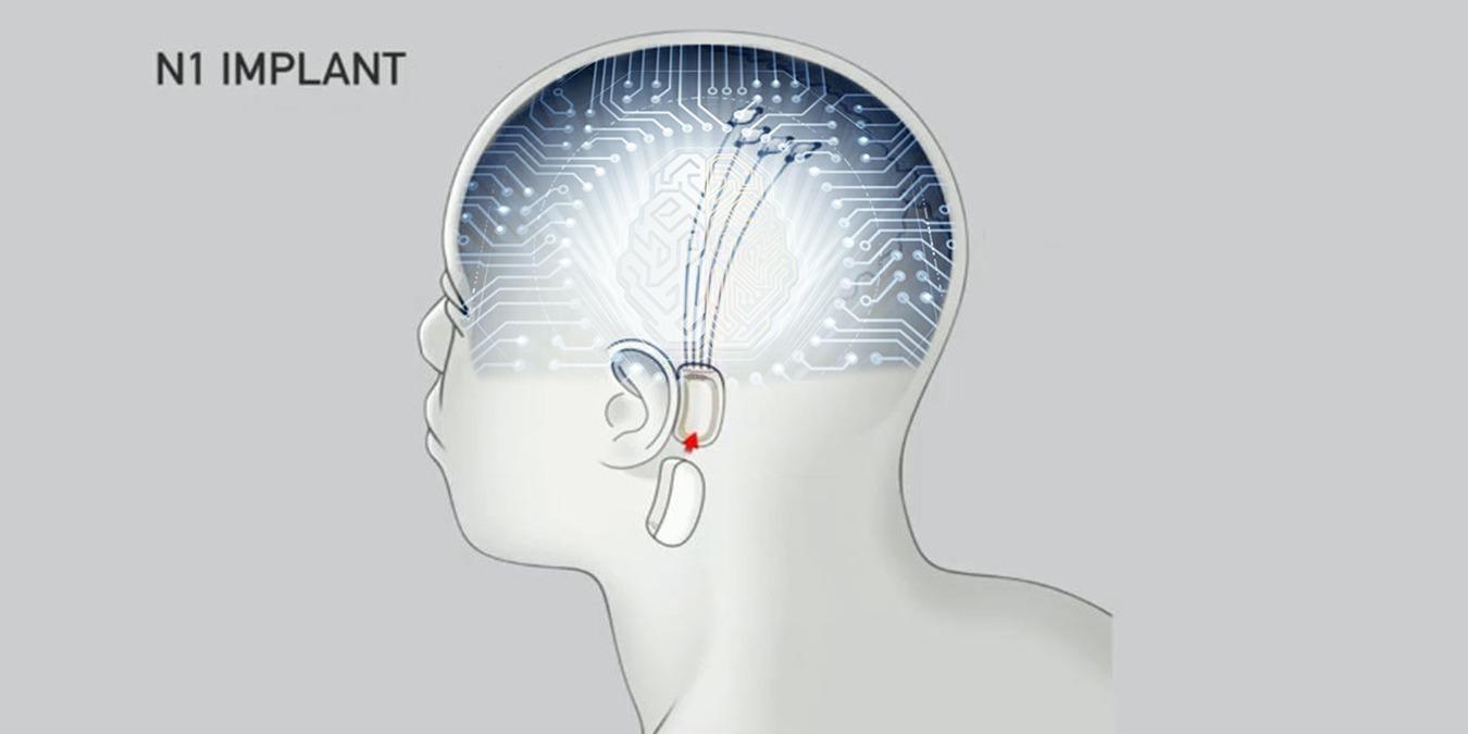 Interfaces cerebro-ordenador: ¿Qué son y por qué oímos hablar de ellas ahora?